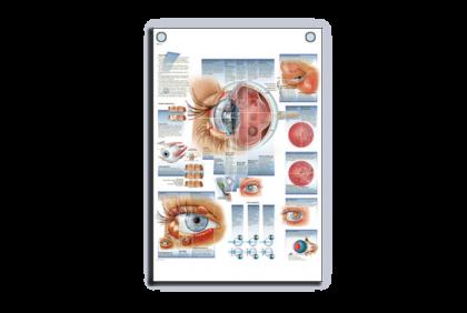 Anatomie - V023 anatomische wandplaat  oogziektes  50 x 67 cm